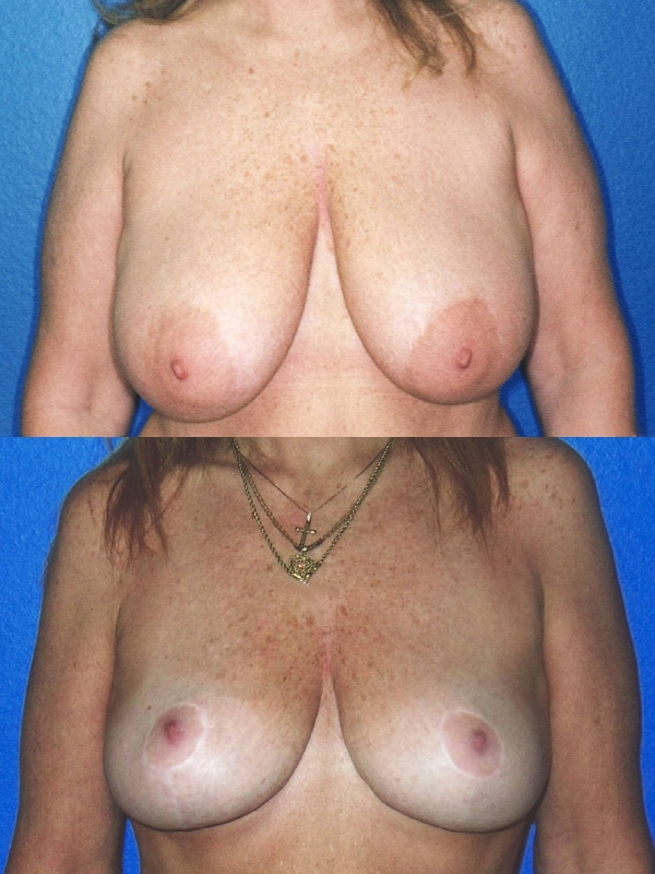 Breasts reduction images