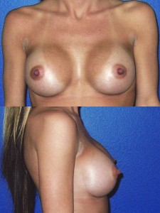 Implants: Breast Augmentation