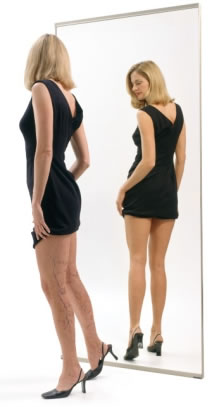 Both Spider Veins and Large Veins can be treated with Sclerotherapy