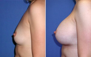 Breast implants: plastic surgery