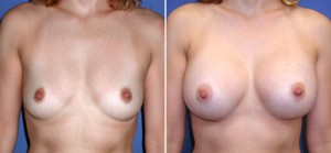 Breasts Implants