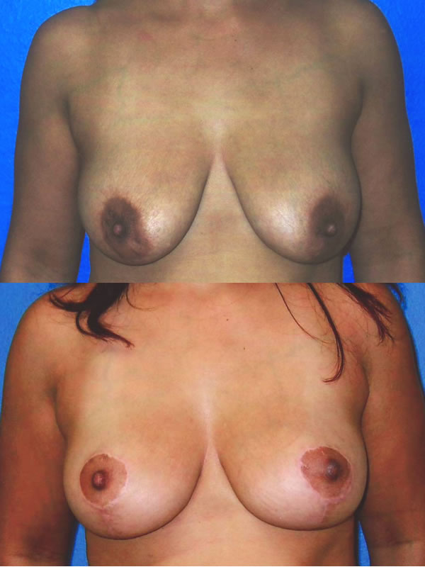 Breasts surgery