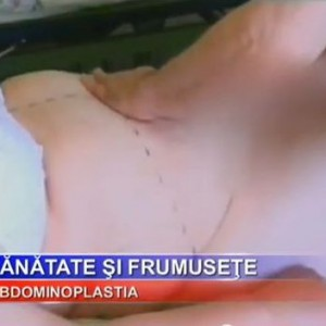 Prezentare video operatie Abdominoplastie