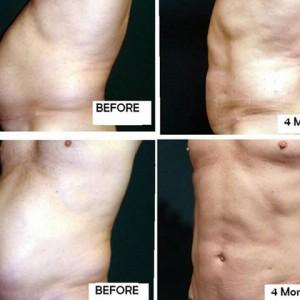 Un nou standard in transferul de tesut adipos si contur corporal