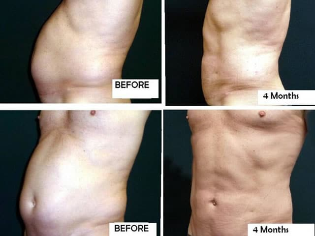 Plastic surgery: man liposuction