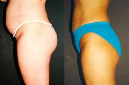 Women liposuction before and after