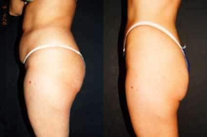 woman liposuction