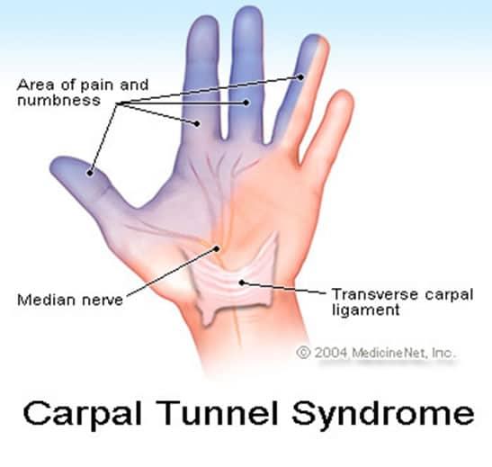 Sindromul de canal carpian - neuropatie compresiva