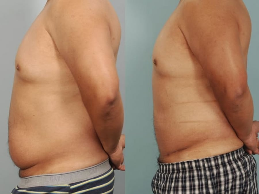 removal of excess skin and fat from the middle and lower abdomen