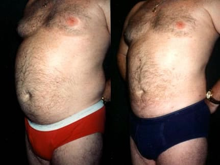 man liposuction