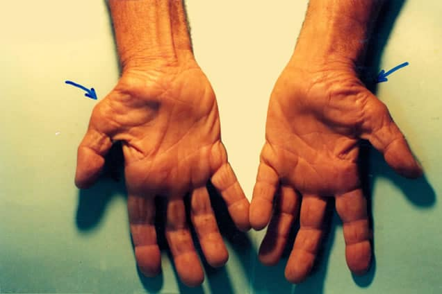 Afectiuni maini tratate prin chirurgie