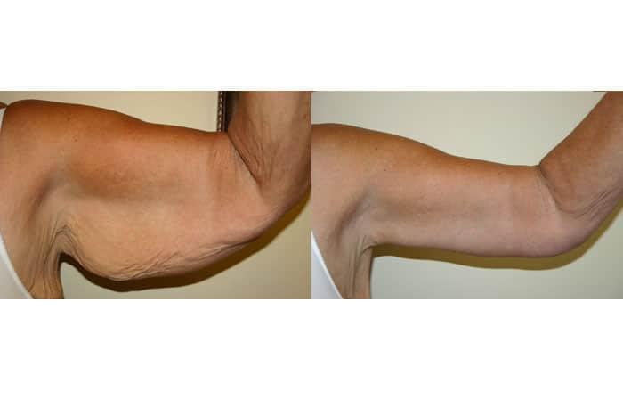 lifting brate brahioplastia