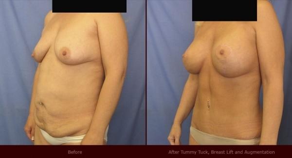 breast surgery, tummy tuck liposuction, facial rejuvenation and vaginal rejuvenation