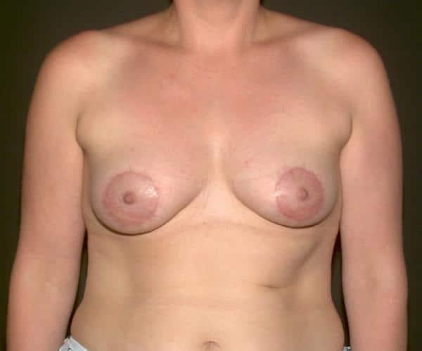 corectie asimetrie mamara: imagine dupa