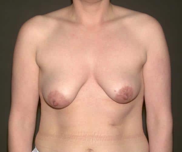 corectie asimetrie mamara: foto inainte