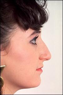 estetica rinoplastie femeie inainte
