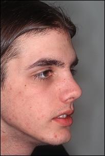 rinoplastie tanar dupa operatie