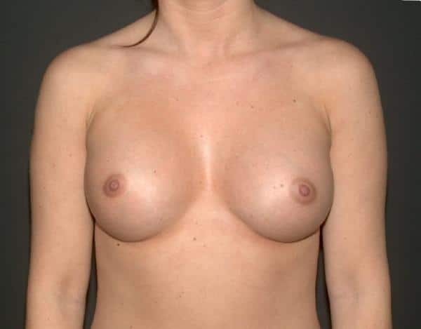 foto sani dupa de operatia estetica de marire sani cu implanturi mamare