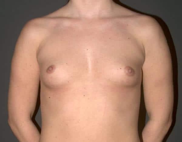 foto femeie sani inainte de operatia estetica de marire