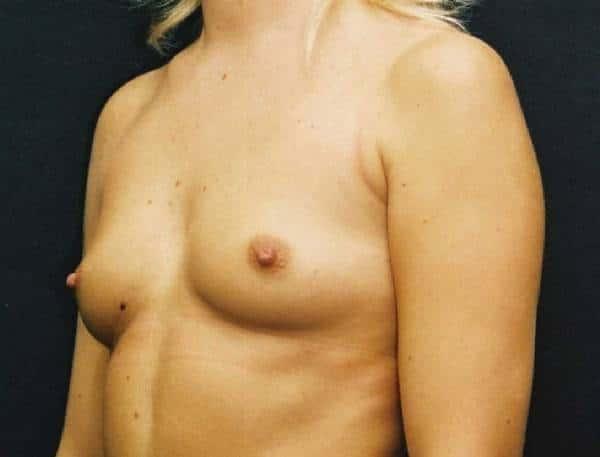 imagine sani fara implanturi mamare
