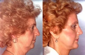 lifting facial, operatii estetice