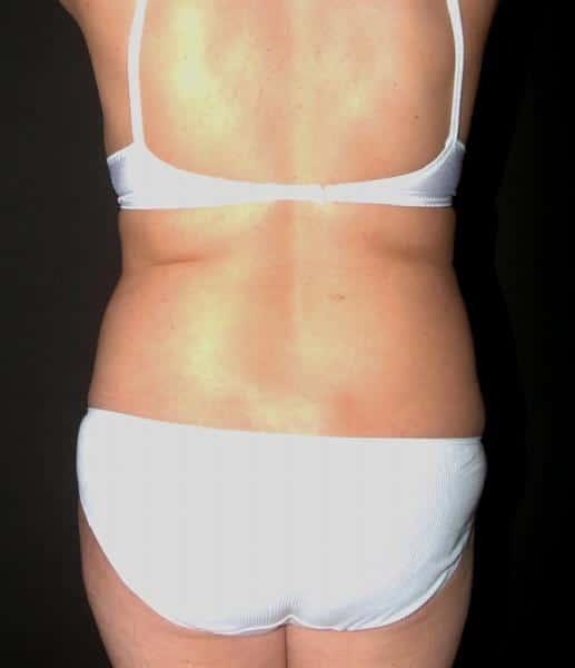 liposuctie doamne inainte: imagine spate