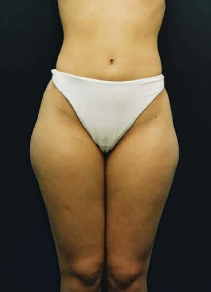 liposuctie-fata-inainte