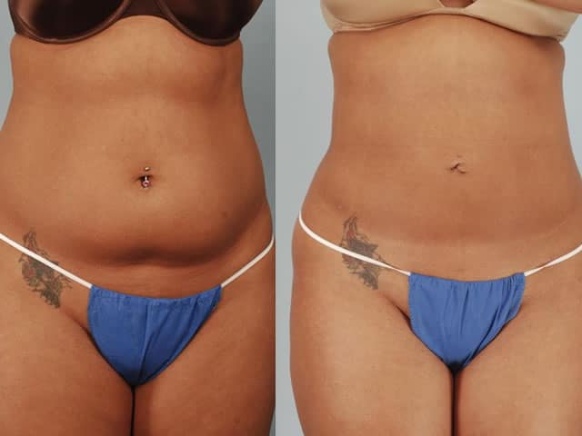 Body contour: woman liposuction