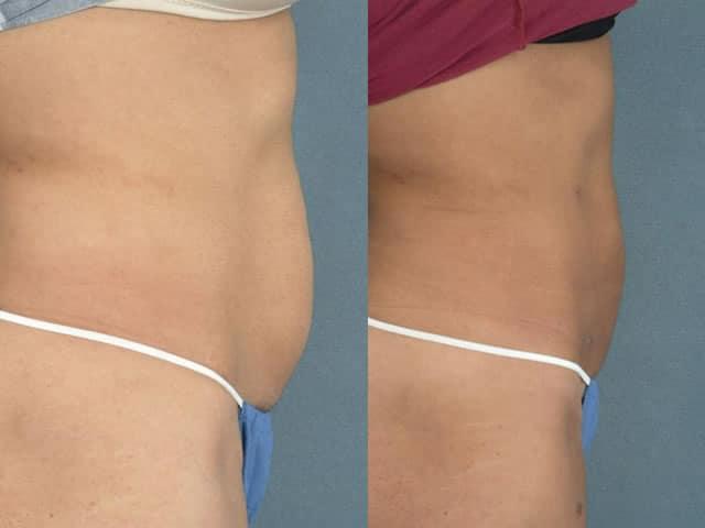 pret liposuctie abdomen