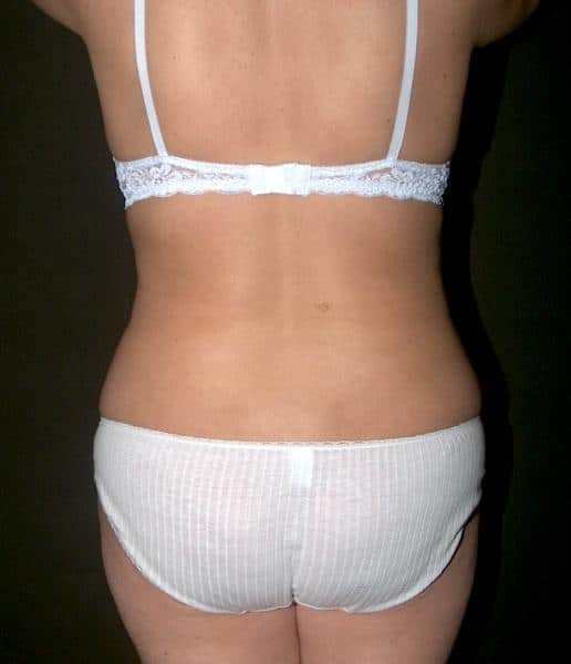 liposuctie doamne dupa operatie: imagine spate