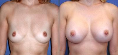 Marire de sani chirurgie estetica