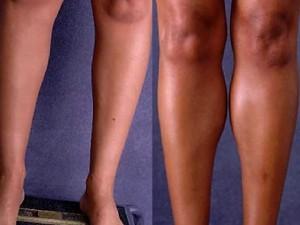 Operatie estetica marire gambe