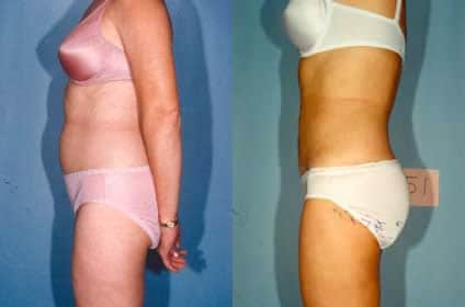 Plastic surgery: woman liposuction