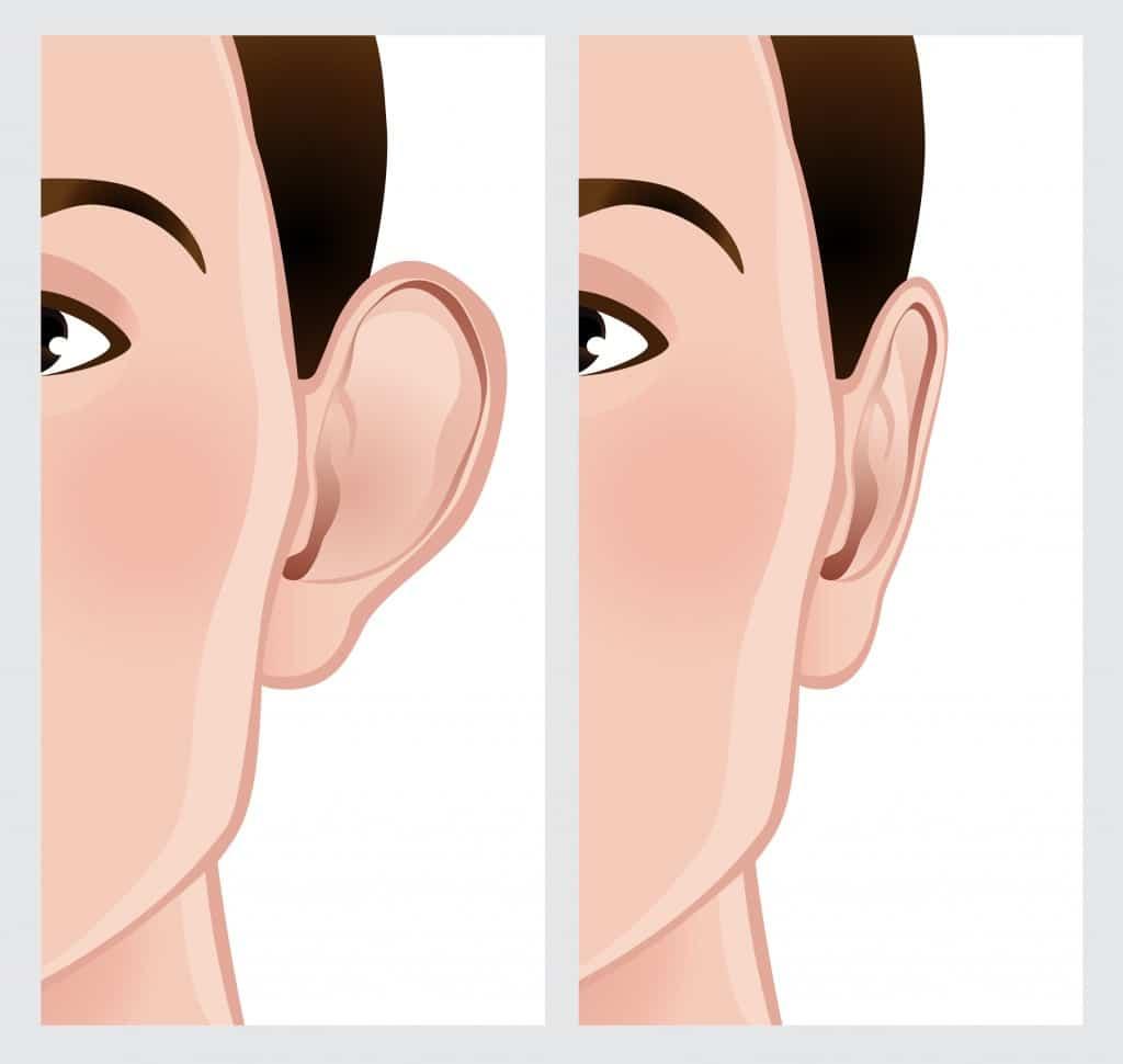 operatie urechi