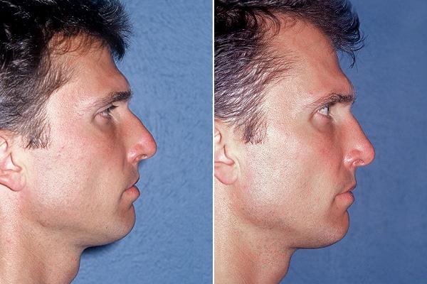 rinoplastie barbat, imagine profil
