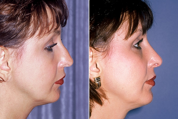 operatie rinoplastie lateral femeie