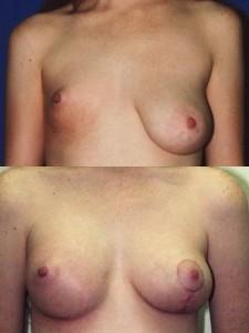 Operatie sani: asimetrie mamara