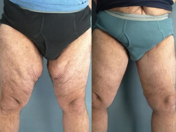 Thighplasty surgery