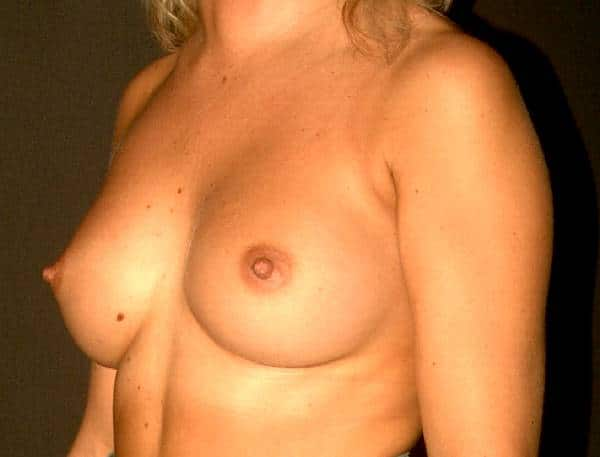imagine sani cu implanturi mamare