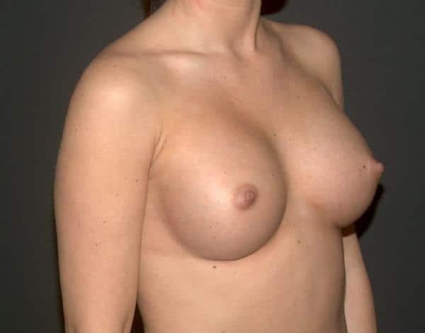 sani mai mari cu implanturi