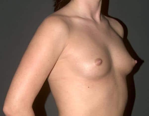 sani mici, inainte de marire cu implant