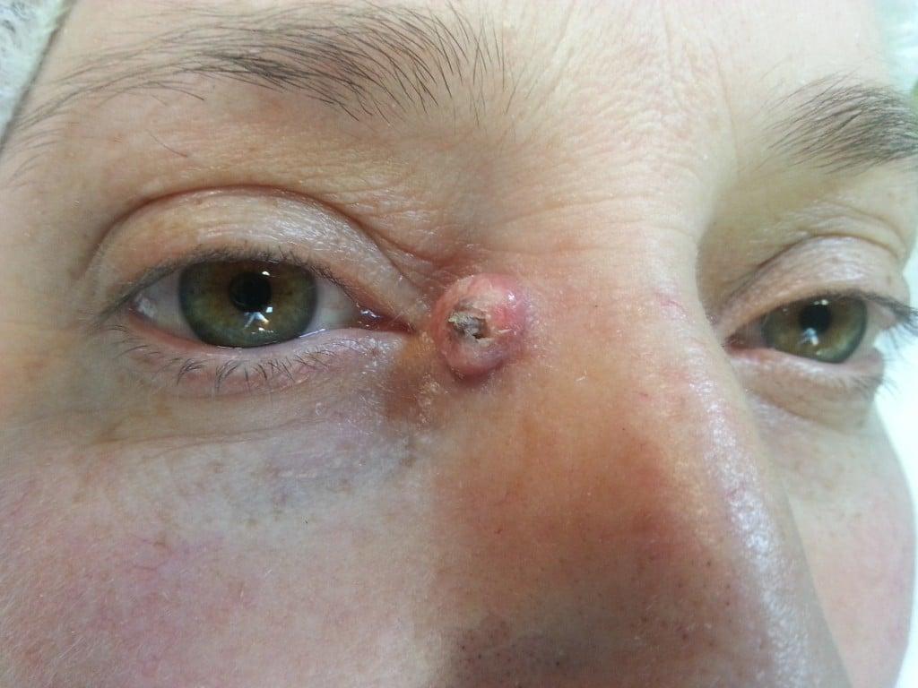 Carcinom cutanat de tip nodulo-chistic unghi intern ochi drept