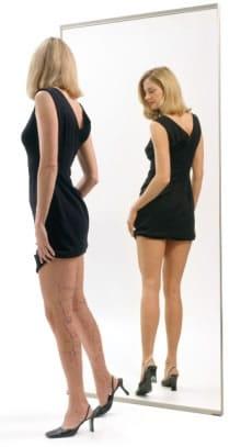 picioare femeie dupa operatie varice