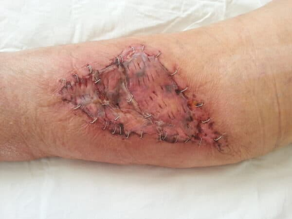 operatie gamba dupa 7 zile