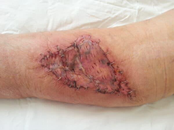 Imagine gamba dupa operatie