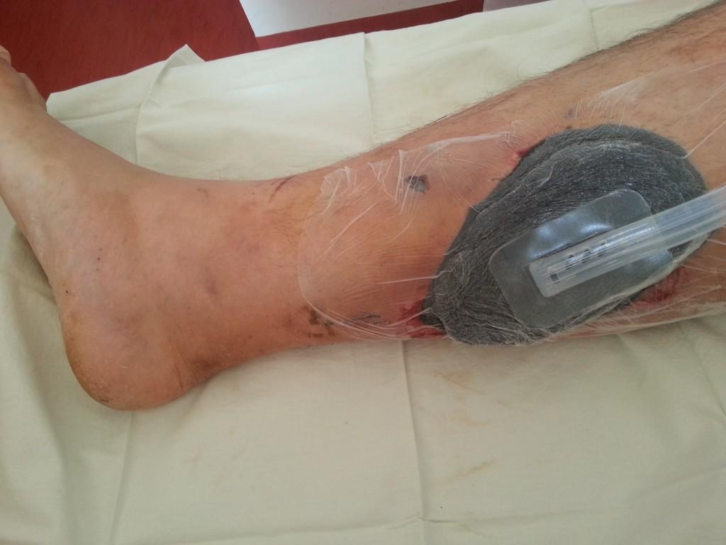 Operatie gamba: presiune negativa asistata Hartmann