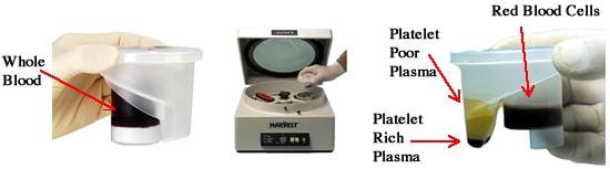 recoltare PRP-plasma bogata in trombocite