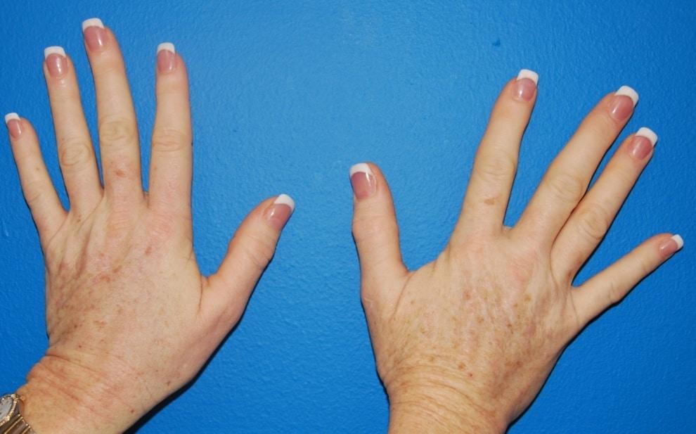 intinerirea mainilor