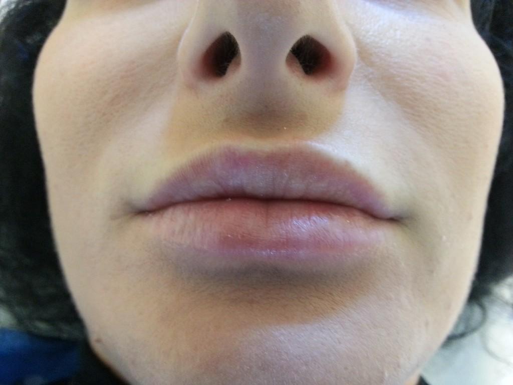aspect inainte de marirea buzelor cu acid hialuronic Juvederm Ultra 3