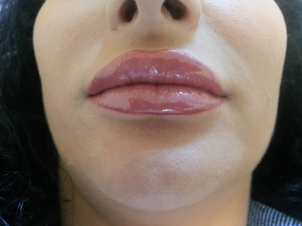 marire buze cu acid hialuronic Juvederm Ultra 3